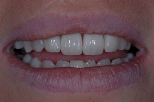 Aesthetic Crowns & Gum Recontouring After
