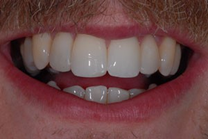Upper Freehand Composite Veneers 1 After