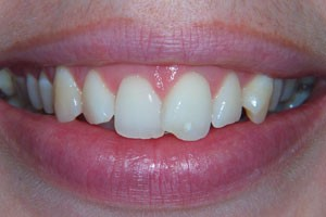 Conventional Porcelain Veneers Before