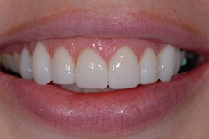 Conventional Porcelain Veneers After