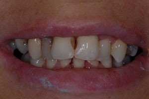 Conventional Veneers Before