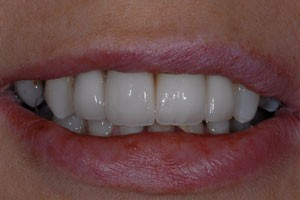 Conventional Veneers After