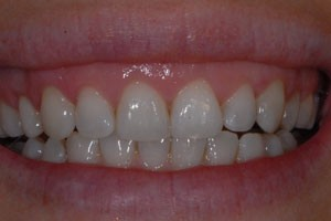 Cosmetic Laser Gum Recontouring After