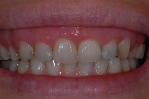 Cosmetic-Laser-Gum-recontouring Before