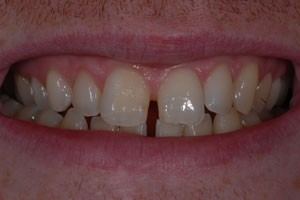 Diastamer Closures with Invisalign Before