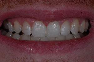 Diastamer Closures with Invisalign After