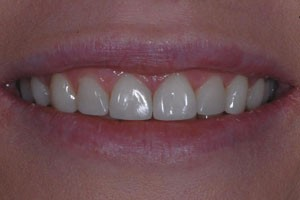 Full Upper Freehand Composite Veneers After