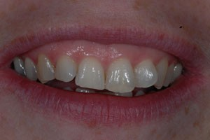 Invisalign & Cosmetic Bonding Before 1
