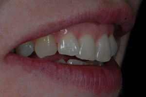 Invisalign & Cosmetic Bonding Before 2