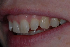 Invisalign & Cosmetic Bonding Before 3