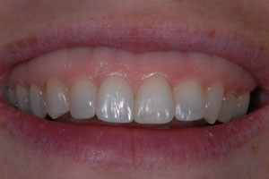 Invisalign & Cosmetic Bonding After 1