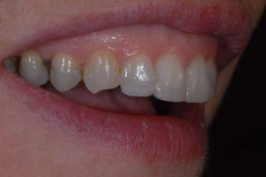 Invisalign & Cosmetic Bonding After 2