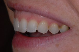 Invisalign & Cosmetic Bonding After 3