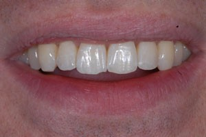 Invisalign Case After 1