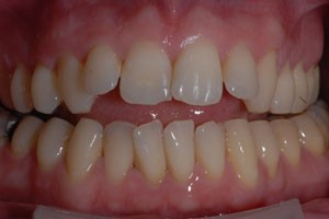 Invisalign Case Before 2