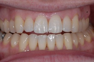 Invisalign Case After 2