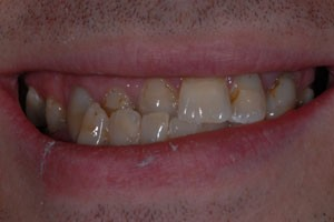 Porcelain Veneers After Invisalign Before
