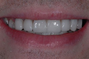 Porcelain Veneers After Invisalign After