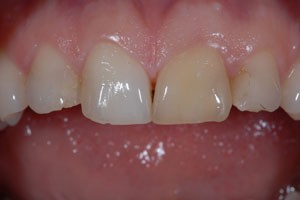 Aesthetic Veneers & Crowns to Fix Discoloured Tooth Before