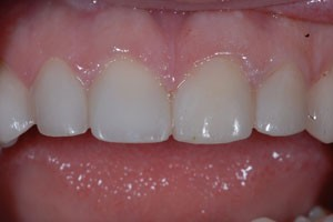 Aesthetic Veneers & Crowns to Fix Discoloured Tooth After