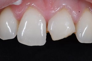 Cosmetic Composite Restoration Before