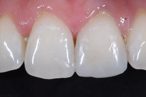 Cosmetic Composite Restoration After