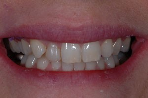Ultra Thin No Prep Porcelain Veneers Before