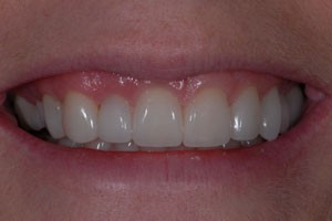 Ultra Thin No Prep Porcelain Veneers After