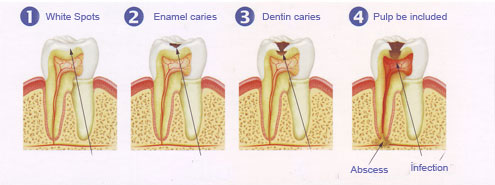 Dental caries steps