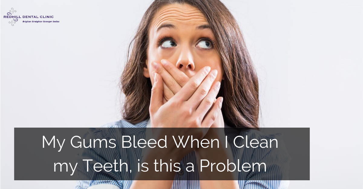 Gums bleed when teeth cleaned