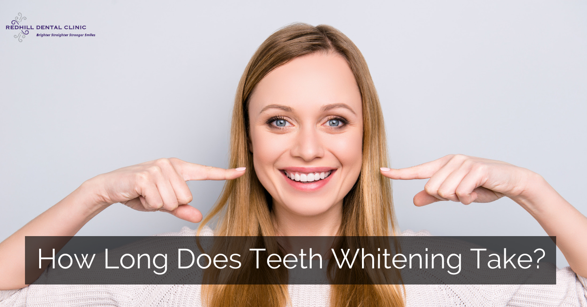 how long does teeth whitening take